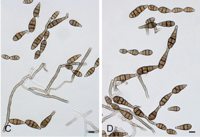 Conidia and conidiophores of Alternaria arborescens