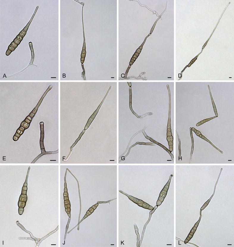 Alternaria crassa: conidia and conidiophores.