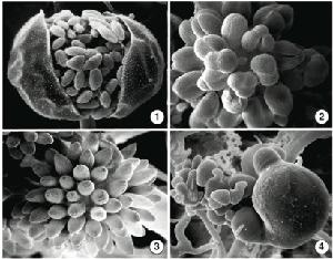 Fig 1) B. trispora sporangia with many sporangiospores. Fig 2-3)