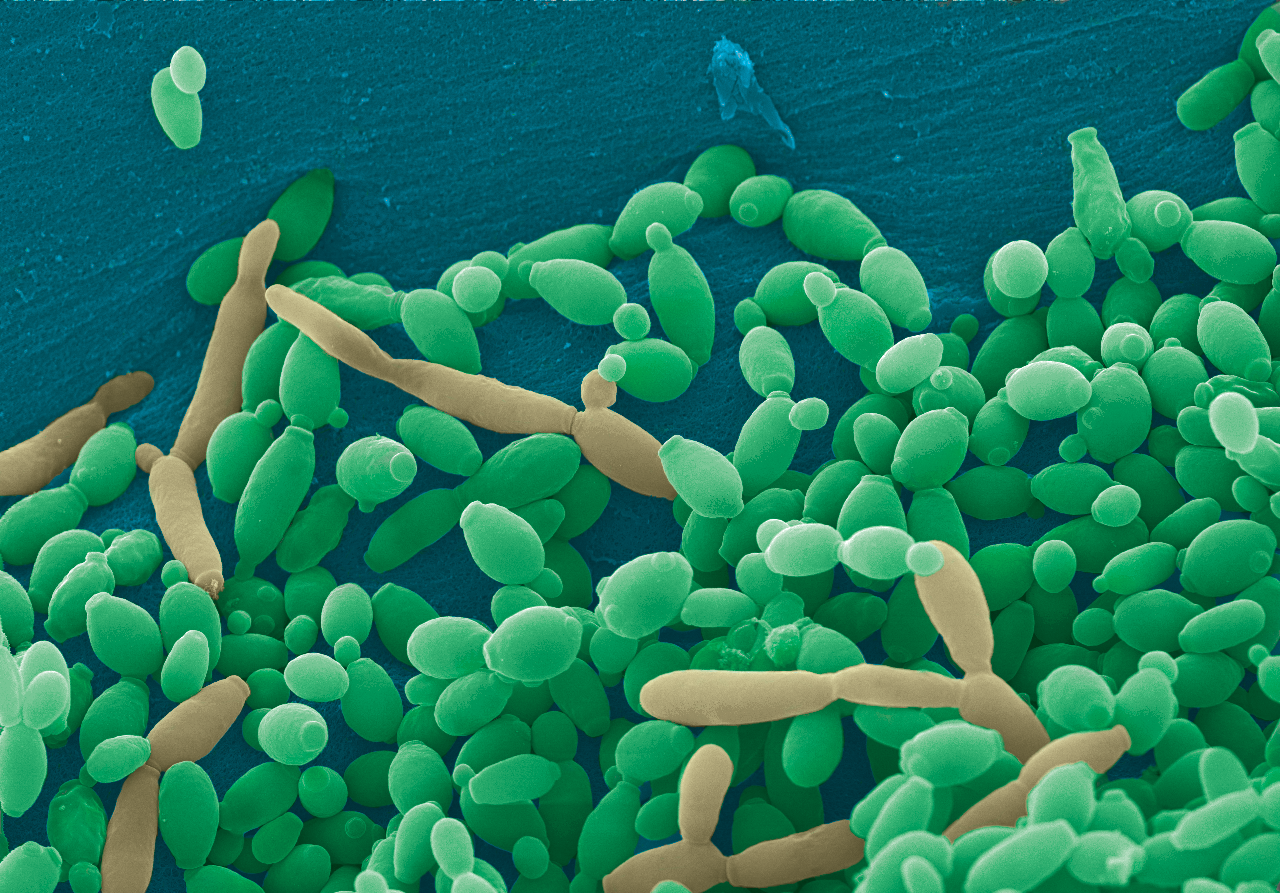 Pseudo-colored scanning electron micrograph of Candida tropicalis displaying both yeast and pseudohyphae.