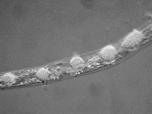 Catenaria anguillulae isolate parasitizing a nematode. Photo credit: Dr W. Wallace Martin, Randolph-Macon College