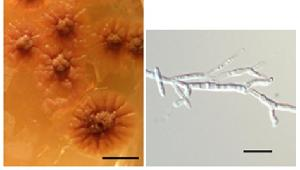Ceraceosorus guamensis sp. nov. culture on PDA (left) and cell morphology from yeast-malt broth (right)