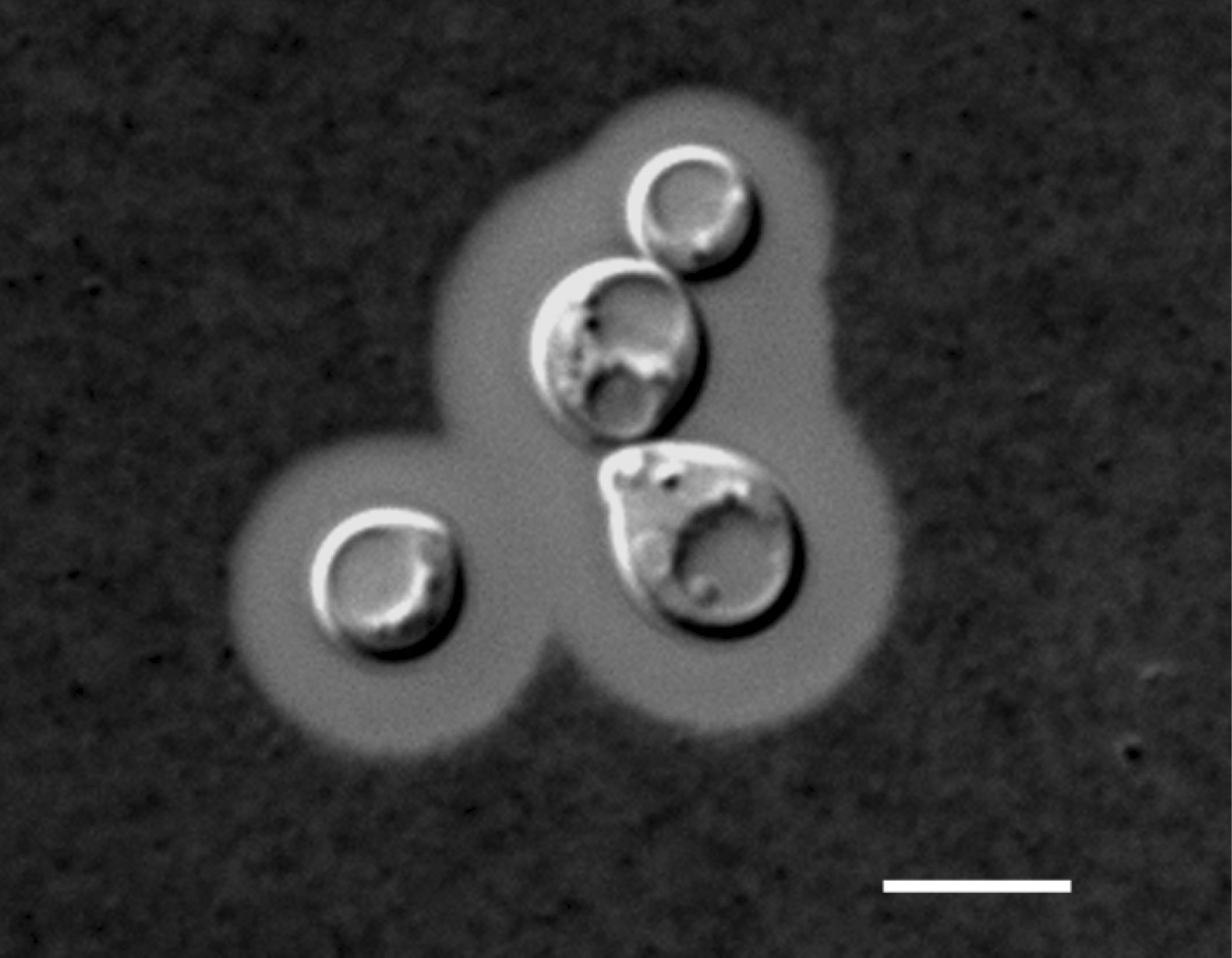 The image of Cryptococcus gattii