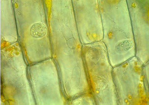 Cladochytrium replicatum JEL0714. Two septate turbinate swellings (center; oriented vertically), definitive structures of Cladochytrium rhizomycelium, in Elodea from original collection. Image provided by Joyce E. Longcore.