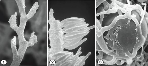 Fig 1) Spirally arranged branched sporangiospores of C. mojavensis. Fig 2) At maturity, each fertile branch produces a cluster of elongate, unispored sporangia. Fig 3) Globose, smooth-walled zygospores of C. mojavensis. Images by Kerry O'Donnell.