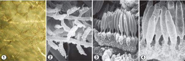 Figs 1-2) Loosely coiled, regularly septate aerial sporophores of C. spiralis. Fig 3) Asexual reproduction is via the production of unispored sporangia that are borne on special lateral branches called sporocladia. Fig 4) Mature striate sporangia. Images by Kerry O'Donnell.