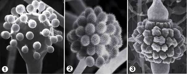 Fig 1)  Pedicellate, unispored sporangia of C. echinulata that typically cover the surface of a terminal fertile vesicle. Fig 2) Sporangiola are covered with elongate spines at maturity. Fig 3) Reddish-brown zygospores between opposed suspensors. Images by Kerry O'Donnell.
