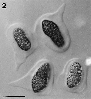 Decorospora gaudefroyi ascospores surrounded by hyaline sheaths.