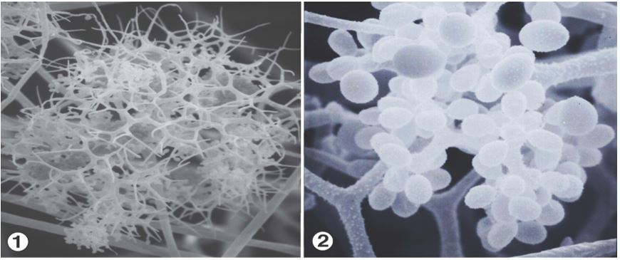 Figures 1 and 2: Sporangiophores that bear unispored sporangiola in terminal heads composed of dichotomously branching fertile hyphae. Images by Kerry O'Donnell