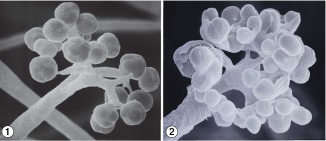 Figures 1 and 2) apical branches of Ellisomyces anomalus sporangiophores, terminating in few-spored sporangiola. Images by Kerry O'Donnell.