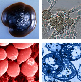 Representative images of black yeasts from the Broad Institute courtesy of Tadahiko Matsumoto, P. McIntosh, P. J. Szaniszlo, C. R. Cooper, Jr., J. D. Marlow, and M. J. Wheeler