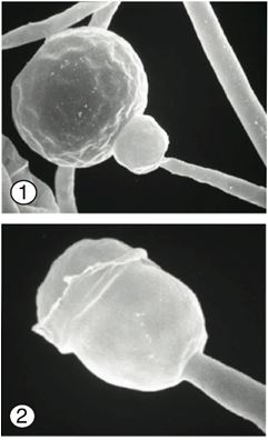 Figure 1) Distinct subsporangial swelling termed (apophysis) of Gongronella butleri. 