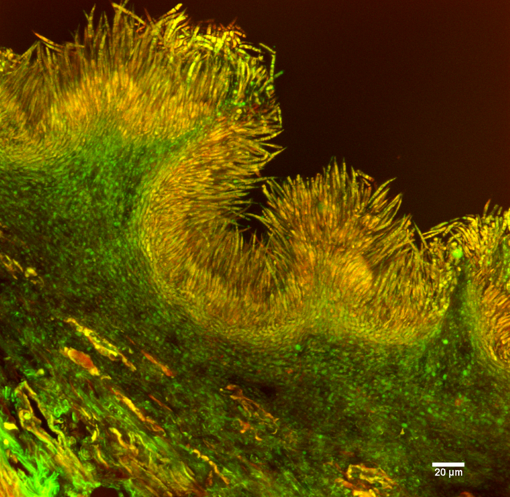 Pycnidia of Gremmeniella abietina lined with conidia colored in orange on this confocal microscopic image.