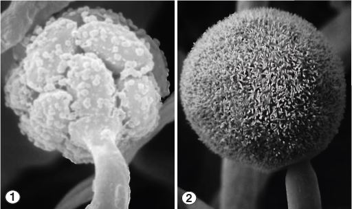 Few-spored sporangiola (Fig 1) and multispored sporangia (Fig 2) of Helicostylum pulchrum. Images by Kerry O'Donnell.