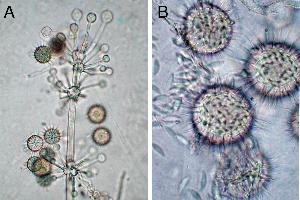 Hesseltinella sporophore apex (a)  and sporangiolum (b). Photo credit: Gerald Benny, Department of Plant Pathology, University of Florida, Gainesville, Florida