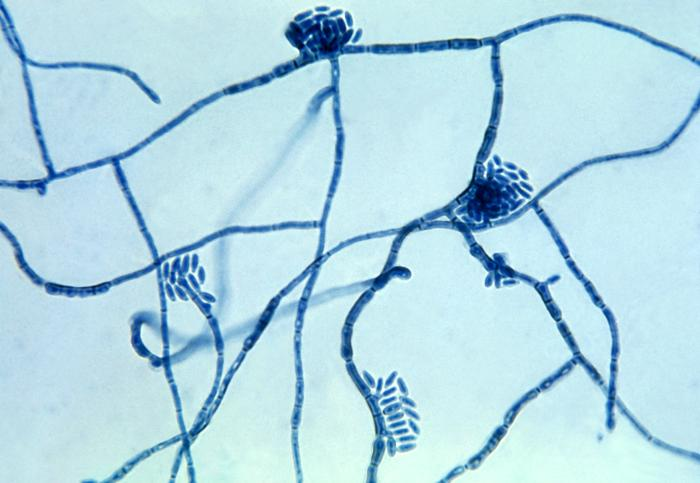 Micrograph of the fungus Hortaea werneckii, which is the causative agent of tinea nigra (photo taken in 1964). Image by Dr. Lucille K. Georg (CDC). https://en.wikipedia.org/wiki/Hortaea_werneckii