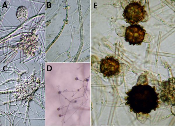 Fig. A. Lentamyces parricidus (Benny s116) sporangium and a large