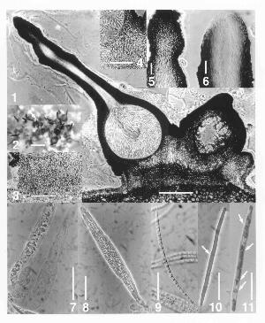 Morphological features of Lollipopaia minuta. Figure 1. Vertical section of fruiting body. Figure 2. Cluster of fruiting bodies. Figures 3-6. Details of fruiting body morphology. Figure 7. Paraphysis (right) and immature asci (left). Figure 8. Mature ascus. Figures 9-11. Ascospores. Image credit: Inderbitzin & Berbee (2001), reproduced with permission from NRC Research Press.