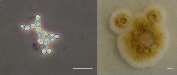 Budding yeast cells (left) and colony morphology (right) of Moniliella sp. MCA3643. Bars = 20 microns (left) and 2.5 mm (right). Photo courtesy: Teeratas Kijpornyongpan (left) and M. Catherine Aime (right).