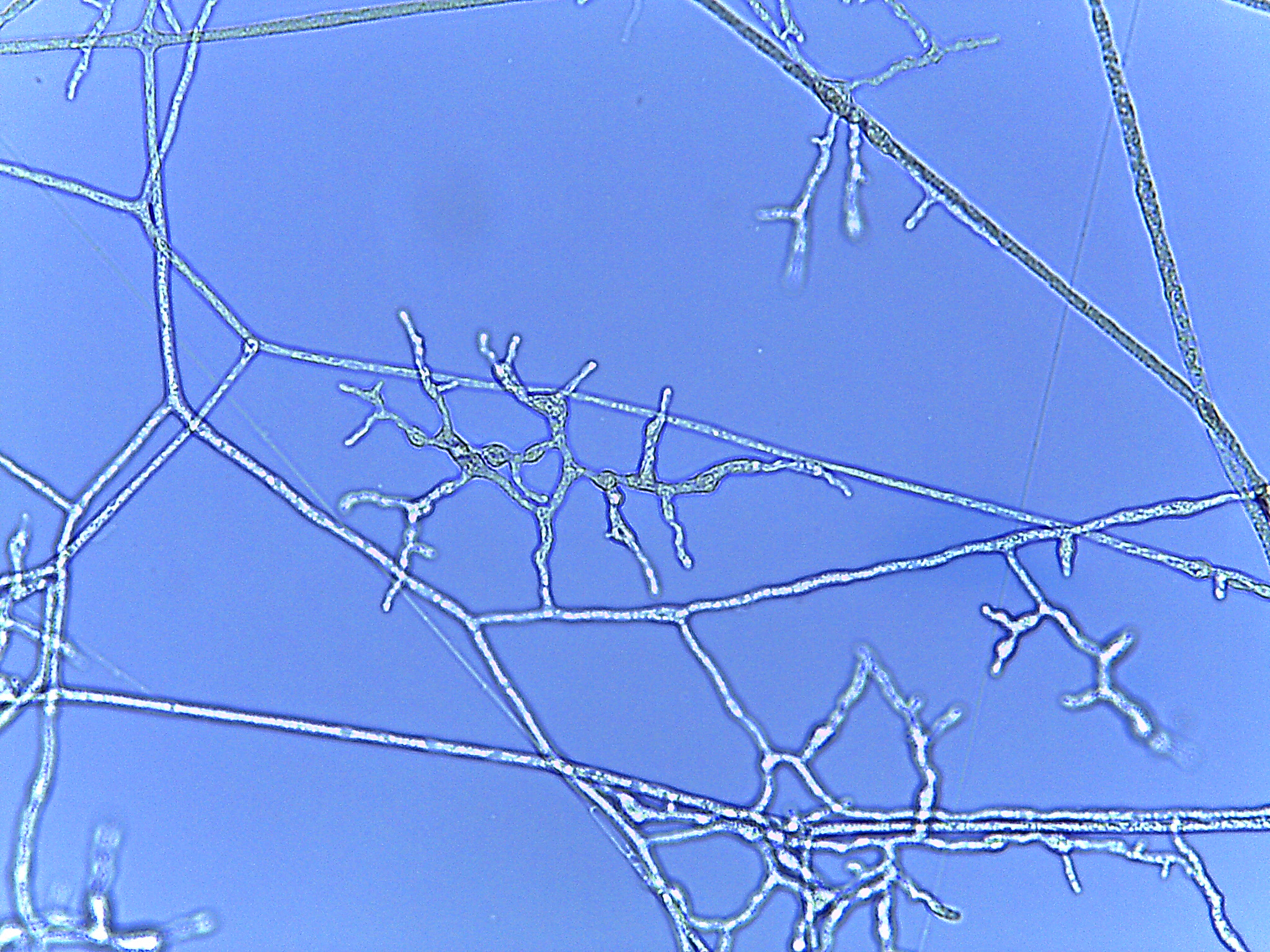 Figure 2. AD185 and related lineages of Mortierellaceae produce terminal dendritic structures on axillary branches of hyphae. The structures mature into branched, spherical chlamydospores. Image courtesy of Julian Liber.