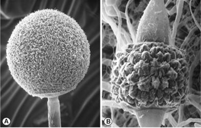 Fig A) Mucor mucedo multispored sporangia borne terminally on aerial sporangiophores. Fig B) M. mucedo zygospore held between opposed suspensors. Images by Kerry O'Donnell.