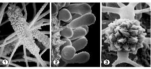 Globose, unispored sporangium (Fig. 1), cylindrical unispored sporangium (Fig. 2), and zygospores between opposed suspensors (Fig. 3) of Mycotypha africana. Images provided by Kerry O'Donnell