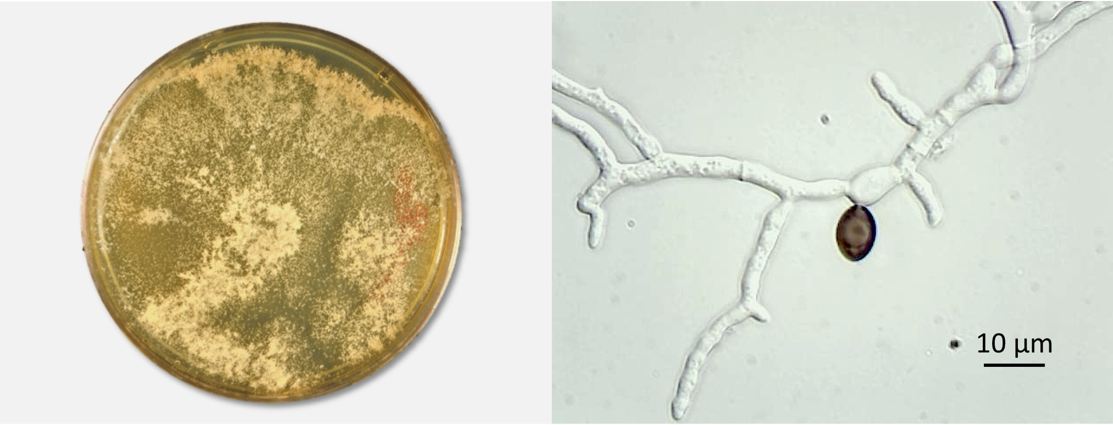 Conidiating colony on MEA and germinating ascopore. Photos by Don Natvig and Miriam Hutchinson