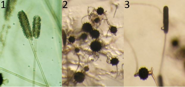 Figure 1) Mycotypha indica (strain 10x3463-300). Two typical vesicles covered with sporangiola. Figure 2) Mycotypha indica (strain 11x3399Z+-300). Zygospores on the agar surface. Figure 3) Mycotypha indica (strain 10x3400 Z+vesicle-300). A zygospore and