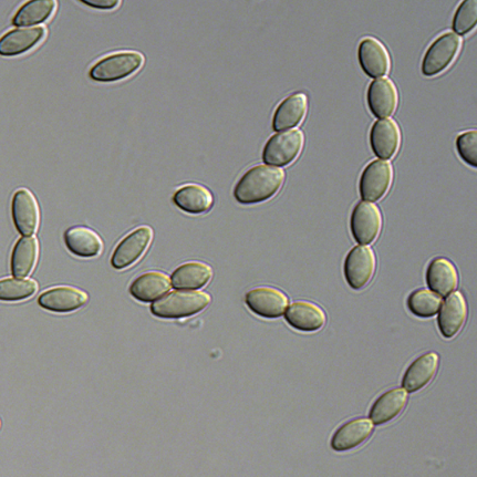 Conidia of Paecilomyces variotii strain CBS 144490.  P. variotii produces large numbers of these airborne asexual spores, each of about 10 µm in length.  Image provided by Andrew Urquhart.