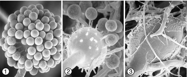 Figures 1 and 2) Globose unispored sporangiola of Phascolomyces articulosus borne terminally on slender pedicles on sporangiophore vesicles. Images by Kerry O'Donnell.