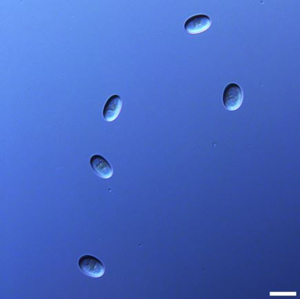 Asexual spores produced by Phycomyces blakesleeanus strain UBC21. Scale bar = 10 um. Image provided by Alexander Idnurm.