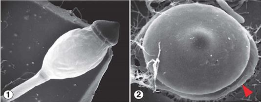 Figure 1) Hat-shaped sporangium of P. umbonatus, which sits atop a turgor-filled phototropic subsporangial vesicle. Figure 2) Discharged sporangia adhere to the surface they land on via sticky material on the sporangium undersurface (red arrow). Images by Kerry O'Donnell.