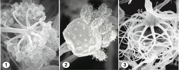 Fig 1) Globose vesicles at the apex of an erect sporangiophore. Fig 2) Numerous few-spored sporangiola, covered with capitate appendages. Fig 3) Smooth zygospores between opposed suspensors bearing branched appendages. Images by Kerry O'Donnell