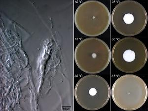 The left panel shows a microscopic picture of Thielavia hyrcaniae CBS 757.83 after 7 days growth on malt extract agar (MEA) medium. The right panel shows six colonies of Thielavia hyrcaniae CBS 757.83 after 7 days growth on MEA at six different temperatures. The figure is created by Cobus Visagie and Joost van den Brink.
