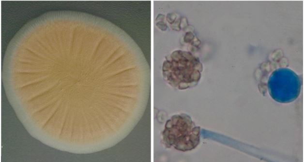 Colony of Umbelopsis sp. PMI 123 growing on potato dextrose agar
